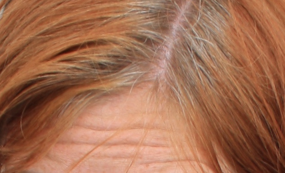 Corrective Hair Colour Charts Back2myroots